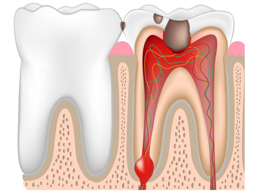 Воспаление корня зуба: симптомы, лечение, профилактика